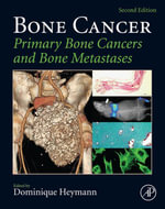 Bone Cancer : Primary Bone Cancers and Bone Metastases