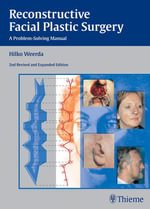 Reconstructive Facial Plastic Surgery : A Problem-Solving Manual - Hilko Weerda