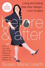 Before & After, Second : Living and Eating Well After Weight-Loss Surgery - Susan Maria Leach