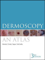 Dermoscopy : An Atlas : 3rd Edition - Scott W. Menzies