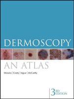 Dermoscopy : An Atlas - Scott W. Menzies