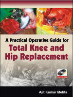 A Practical Operative Guide for Total Knee and Hip Replacement - Ajit  Kumar Mehta