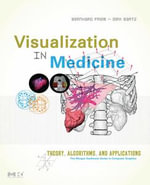 Visualization in Medicine : Theory, Algorithms, and Applications - Bernhard Preim