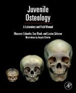 Juvenile Osteology : A Laboratory and Field Manual - Louise Scheuer