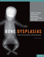 Bone Dysplasias : An Atlas of Genetic Disorders of Skeletal Development - Jurgen W. Spranger