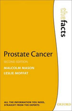 Prostate Cancer : The Facts - Malcolm Mason