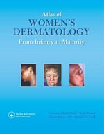 Atlas of Women's Dermatology : From Infancy to Maturity - Lawrence C. Parish