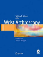 Wrist Arthroscopy :  A Practical Guide to Management