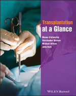 Transplantation at a Glance : At a Glance Medical Reference - Menna Clatworthy