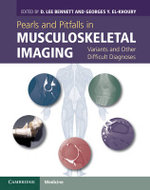 Pearls and Pitfalls in Musculoskeletal Imaging : Variants and Other Difficult Diagnoses
