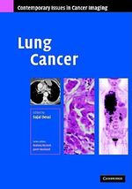 Lung Cancer : Part of Contemporary Issues in Cancer Imaging
