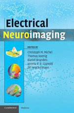 Electrical Neuroimaging