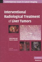 Interventional Radiological Treatment of Liver Tumors : Contemporary Issues in Cancer Imaging