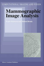 Mammography Image Analysis : The Complete Guide to Creating an Effective, Safe,... - Ralph Highnam