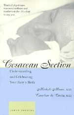 Cesarean Section : Understanding and Celebrating Your Baby's Birth - Michele C. Moore