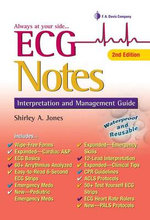 ECG Notes : Interpretation and Management Guide - Shirley A. Jones