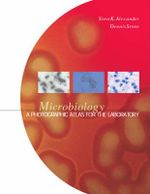 Microbiology : A Photographic Atlas for the Laboratory - Steven K. Alexander