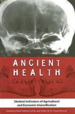 Ancient Health : Skeletal Indicators of Agricultural and Economic Intensification