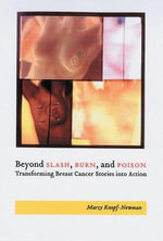 Beyond Slash, Burn, and Poison : Transforming Breast Cancer Stories into Action - Marcy Jane Knopf-Newman