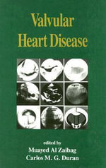 Valvular Heart Disease : Organ Replacement in American Society