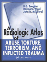 A Radiologic Atlas of Abuse, Torture, Terrorism and Inflicted Trauma - B.G. Brogdon