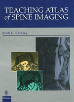 Teaching Atlas of Spine Imaging - Ruth G Ramsey