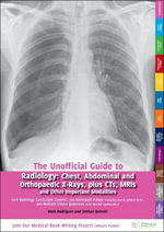 The Unofficial Guide to Radiology: Chest, Abdominal and Orthopaedic X Rays, Plus CTs, MRIs and Other Important Modalities : Core Radiology Curriculum. 100 Annotated X-rays (Including How to Present Them). 300 Multiple Choice Questions (with Detailed Explainations)