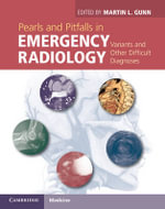 Pearls and Pitfalls in Emergency Radiology : Variants and Other Difficult Diagnoses