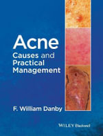 Acne : Causes and Practical Management - F. William Danby