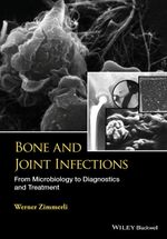 Bone and Joint Infections : From Microbiology to Diagnostics and Treatment - W. Zimmerli