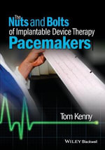 The Nuts and Bolts of Implantable Device Therapy : Pacemakers - Tom Kenny