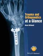 Trauma and Orthopaedics at a Glance : At a Glance - Henry Willmott