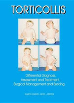 Torticollis : Differential Diagnosis, Assessment and Treatment, Surgical Management and Bracing - Karen Karmel-Ross