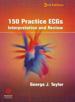 150 Practice ECGs : Interpretation and Review - George Taylor