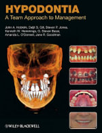 Hypodontia : A Team Approach to Management - John A. Hobkirk
