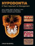 Hypodontia : A Team Approach to Management - John A. Hobkirk