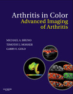 Arthritis in Color : Advanced Imaging of Arthritis - Michael A,. Bruno