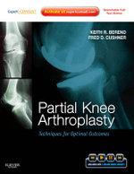 Partial Knee Arthroplasty : Techniques for Optimal Outcomes - M Keith R Berend