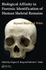 Biological Affinity in Forensic Identification of Human Skeletal Remains : Beyond Black and White