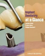 Implant Dentistry At-a-Glance : At a Glance Medical Reference - Philippe Bouchard