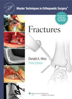 Fractures : Fractures Cb - Donald A. Wiss
