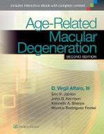 Age-Related Macular Degeneration - D.Virgil Alfaro