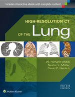 High-Resolution CT of the Lung - W.Richard Webb
