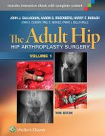 The Adult Hip : Arthroplasty and Its Alternatives (2 Vol) - John Callaghan