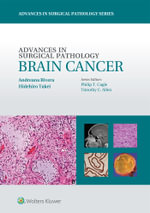Advances in Surgical Pathology : Brain Cancer - Andreana Rivera