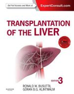 Transplantation of the Liver - Ronald W. Busuttil