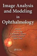 Image Analysis and Modeling in Ophthalmology