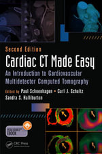 Cardiac CT Made Easy : An Introduction to Cardiovascular Multidetector Computed Tomography