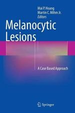 Melanocytic Lesions : A Case Based Approach