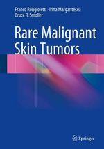 Rare Malignant Skin Tumors - Franco Rongioletti